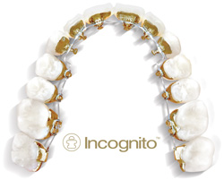 Incognito Invisible Braces at Taylor Orthodontics