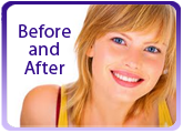 Before and After Orthodontic Treatment Toronto ON