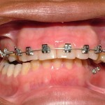 Scarborough braces Dr. James Noble