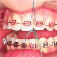 Toronto invisalign orthodontist, flossing with braces