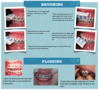 Oral Hygiene Instructions With Braces